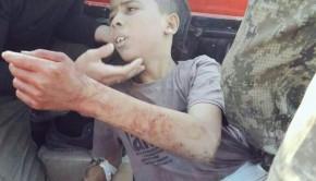 aleppo 12 éves fiú